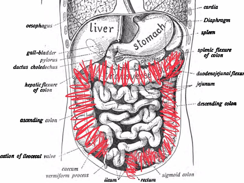 Colectomy diagram - red scribbles over large intestine colon and rectum